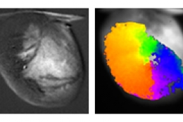 medical scans of a heart